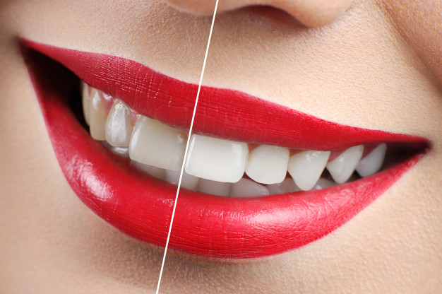 Teeth Whitening Mississauga